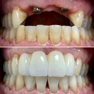 dental implants, implant bridge,