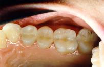 New cosmetic composite restorations