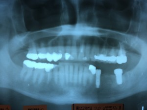 Implants placed in jaw.