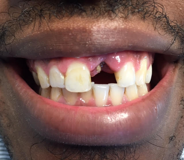 partial dentures-before/after | Dr. Gentry