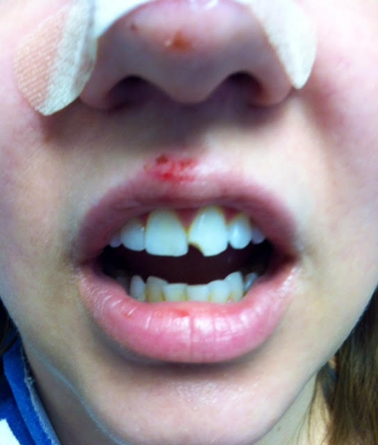Cracked Teeth/tooth Fractures.