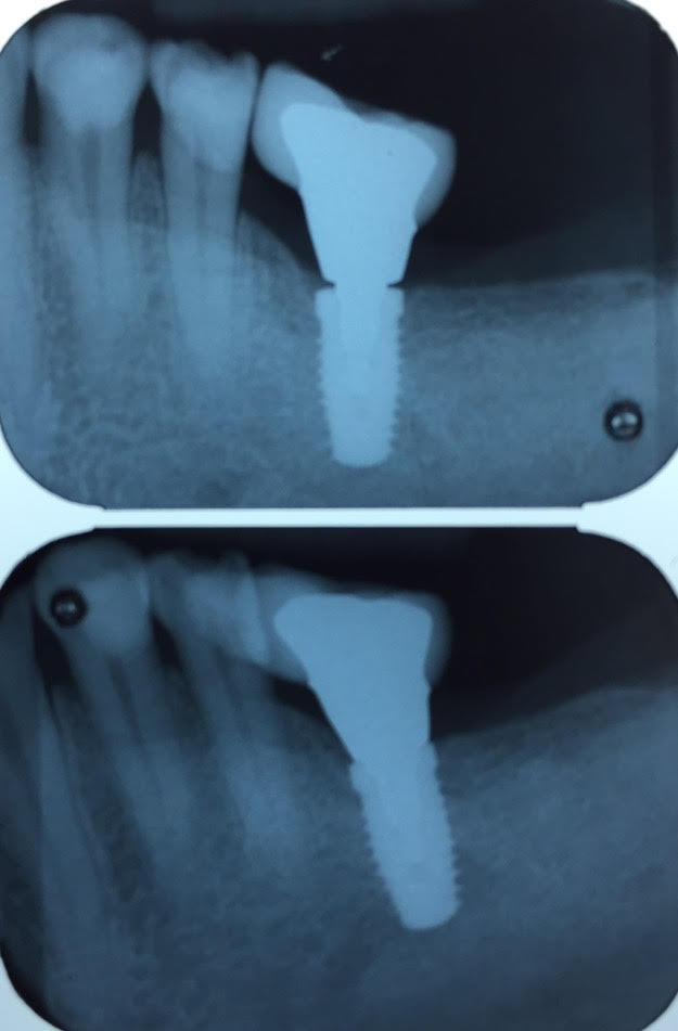 Importance of taking a radiograph to verify accurate