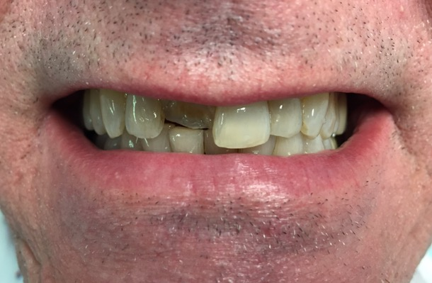 cracked tooth | Dr. Gentry