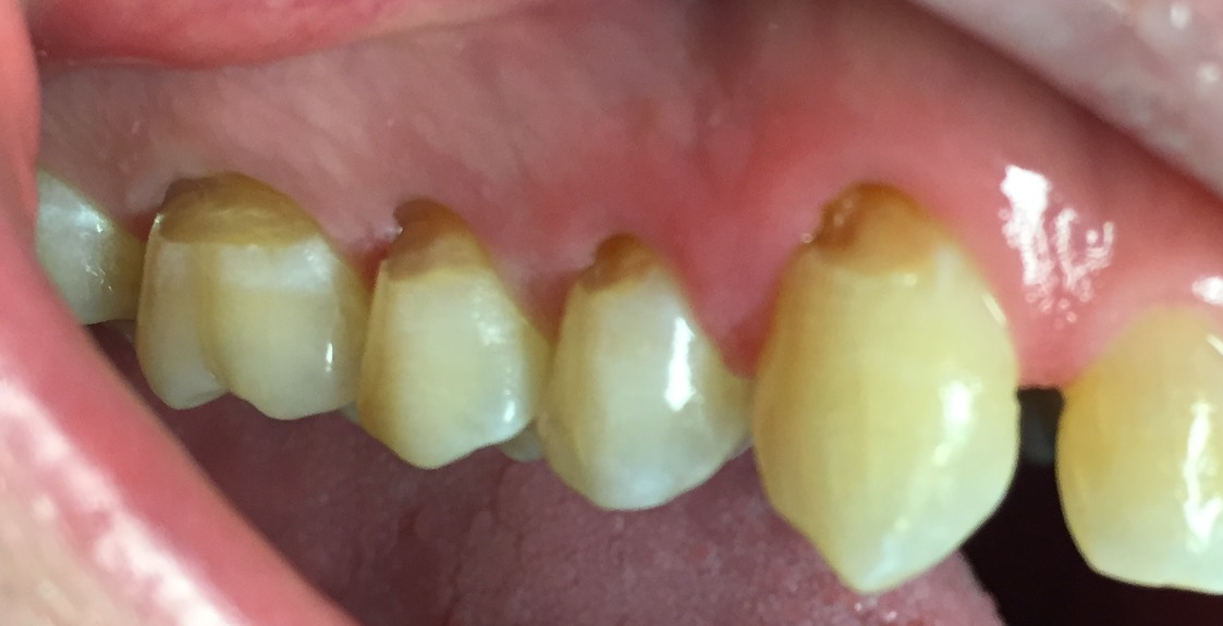root surface caries Dr raymond lim discusses how gum recession, which often occurs as we age,  makes us more susceptible to developing caries on root.