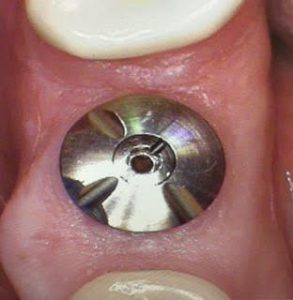 implant encode abutment