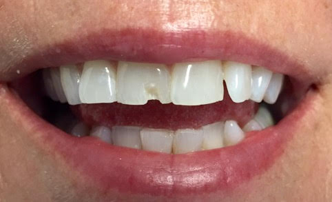 chipped teeth-before/after | Dr. Gentry