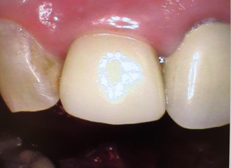 cracked tooth | Dr  Gentry