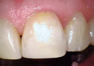 after-composite-restoration