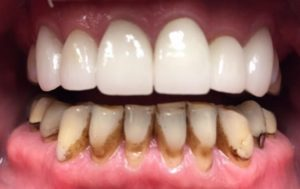after-upper crowns 1 year later