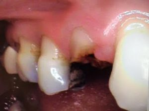 broken tooth 3
