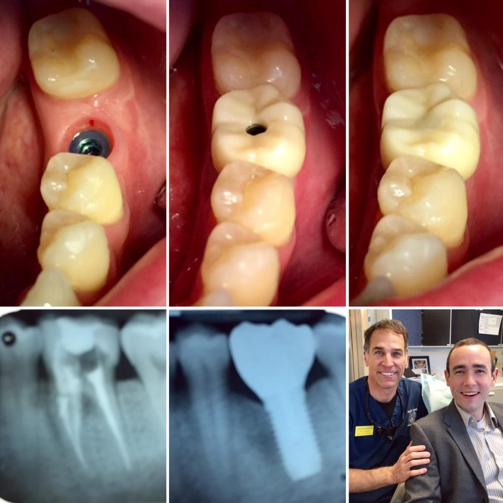 Dr Gentry dental implant