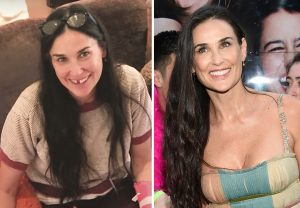 demimoore-before after