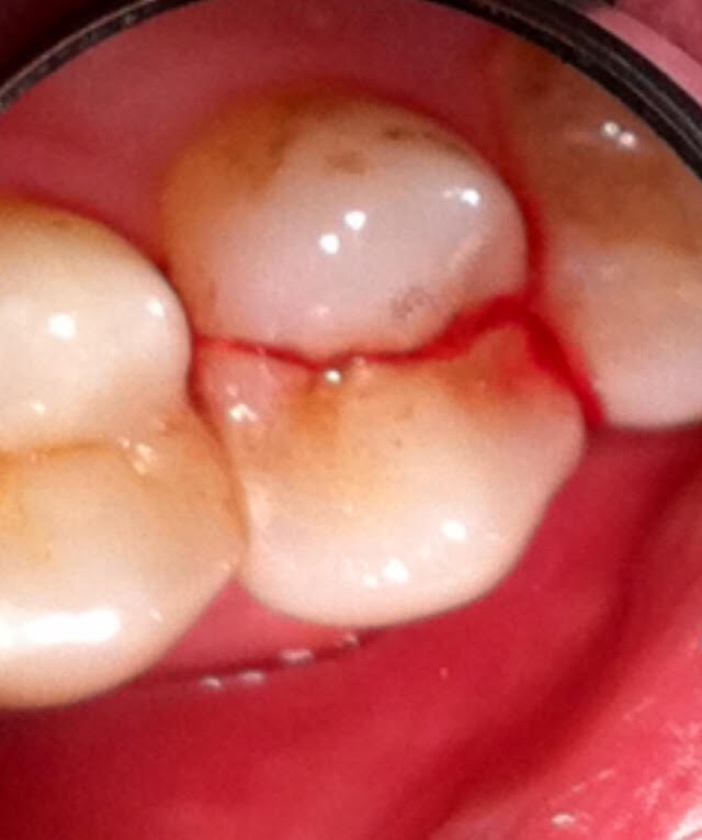 tooth cracked during extraction