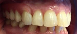 Partial Dentures Before After Dr Gentry