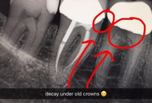 decay-under-crowns