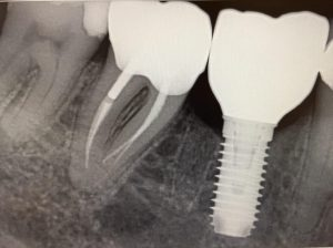 parfect_crown_&_dental_implant