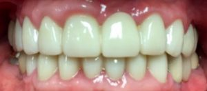 dental.crowns.after