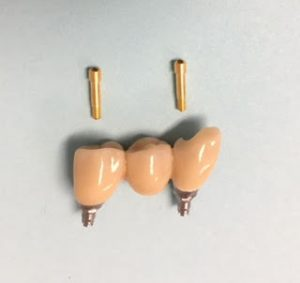 dental_implant_gold_screws