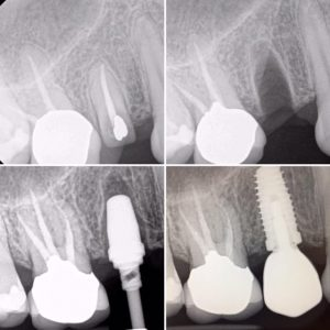 dental-implant-xrays