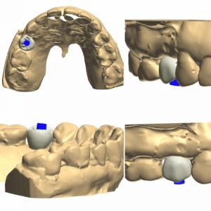 dentalimplant-design-images