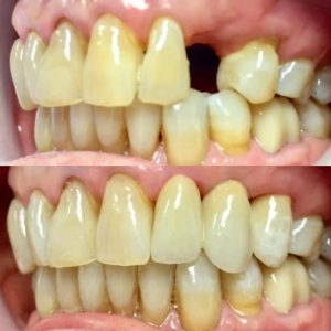 dental_porcelain_bridge
