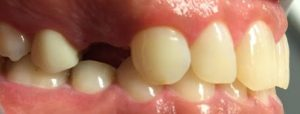 dental_implant_before