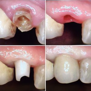 dental_implant_zirconia_abutment