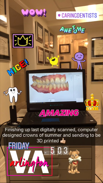 digital_dental_impression
