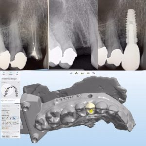 dental_implant_xrays_design_image